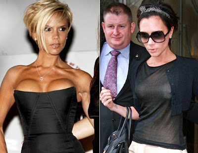 OFF HER CHEST: Victoria Beckham has confirmed she had her DD breast implants