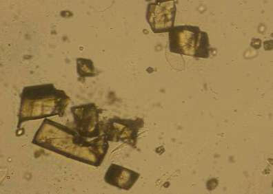 Urine Sediment Crystals