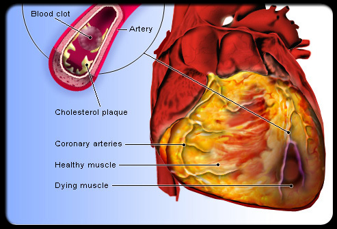 arteries of heart diagram. arteries of heart diagram.