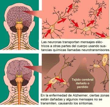 El daño neuronal de las drogas