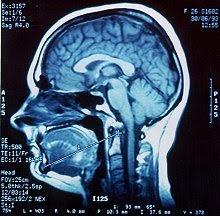 Health csi facial reconstruction opinion, scored