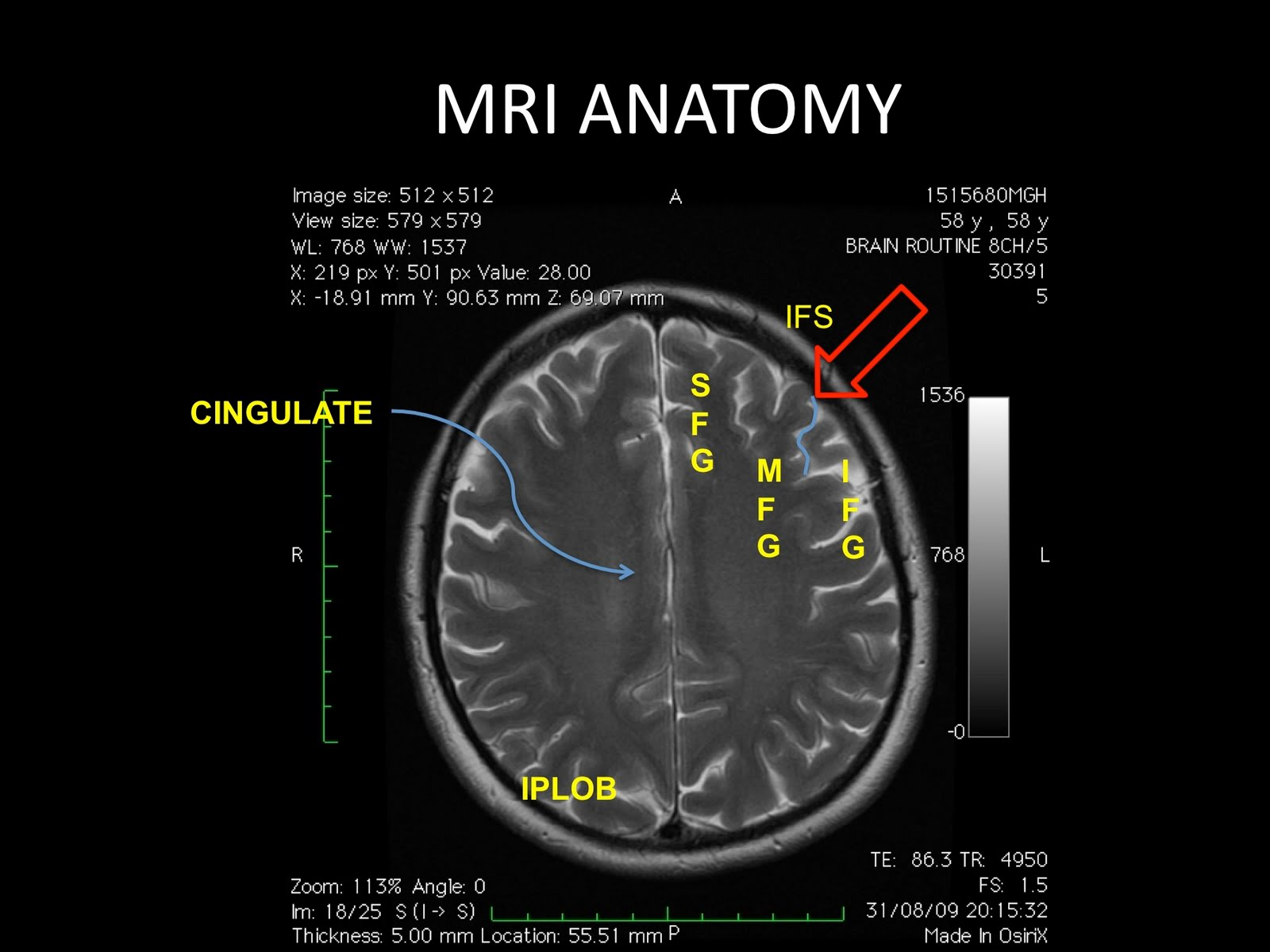 Centrum semiovale mri anatomy 7311024 - follow4more.info