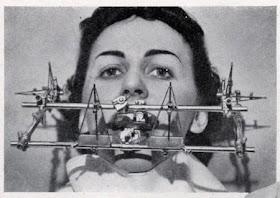 My Bandita: Wild and Wacky on jaw wired shut, jaw suspension, jaw parts, jaw socket, jaw surgery procedures, jaw splint, jaw diagram, jaw clutch,