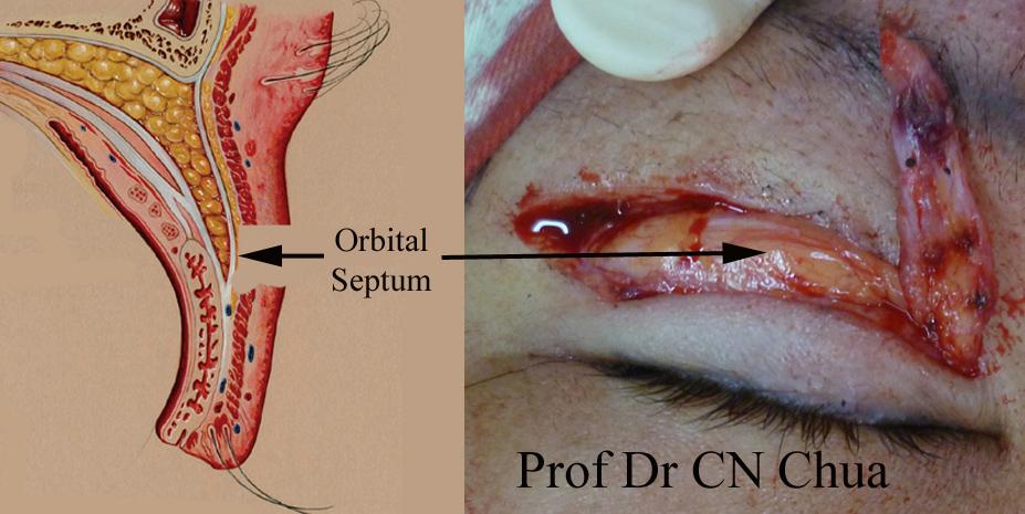 Eyelid Surgery By Prof Dr Cn Chua Live Anatomy Of A Single