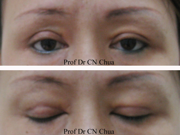 Eyelid Surgery by Prof Dr CN CHUA          Bad Double Eyelid Surgery
