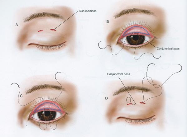 Double Eyelid Surgery Gone Wrong Eyelid surgery by prof dr cnBad Double Eyelid Surgery