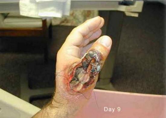 Le traitement des helminthes après les puces