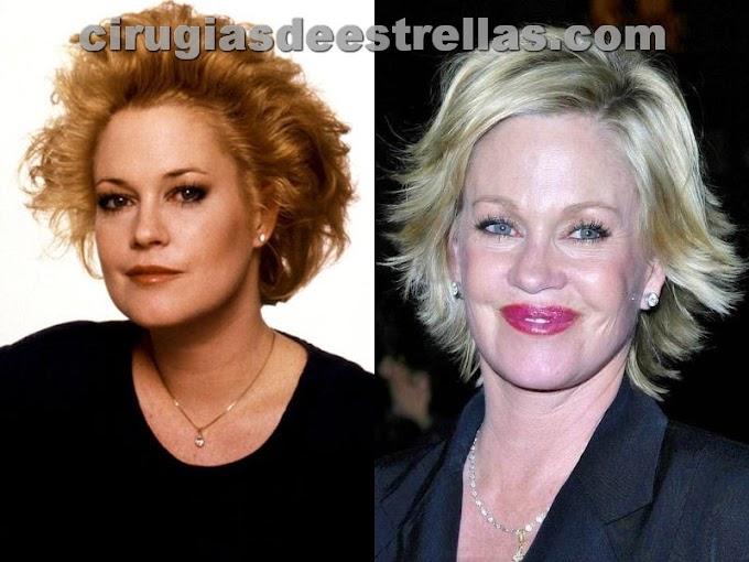 Melanie Griffith antes y después del colágeno