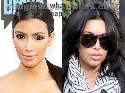 Kim Kardashian operada