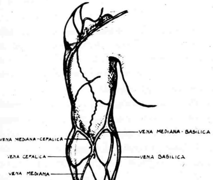 Cirugía Vascular Actualizada: ACCESOS VASCULARES PARA HEMODIÁLISIS ...