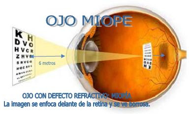 Imagen esquemtica de un ojo miope