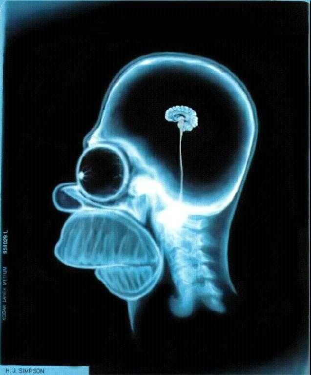 Homer simpson x ray