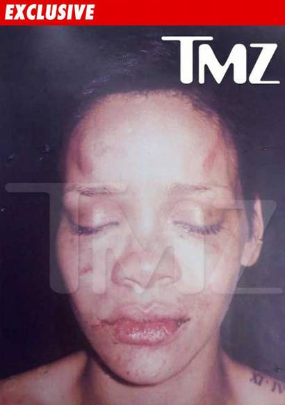 photo of Rihanna beat up by chris Brown