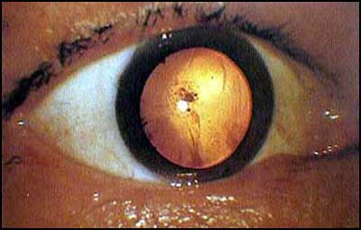 A-bomb cataract