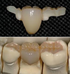Puente Dental de Porcelana