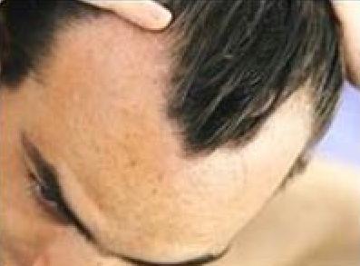 La máscara para los cabellos de la mostaza y la sal