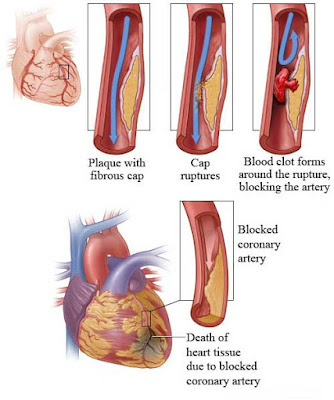 blocked-coronary-artery-diagram