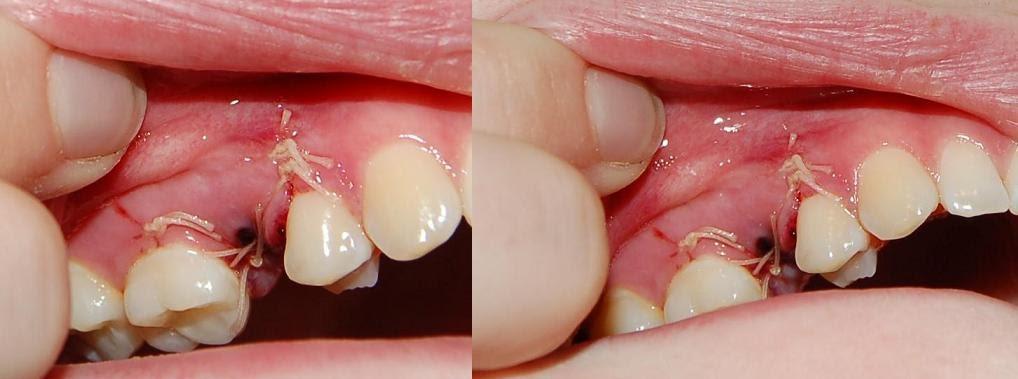 dra ut tand läkning