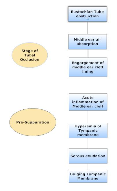 pathology and pathophysiology of development of acute otitis media