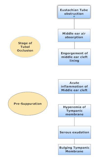 pathology and pathophysiology of development of acute otitis media