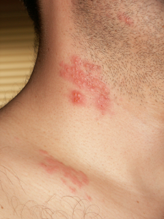herpes zoster shingles eruption rash