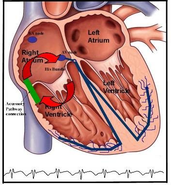 Types of Arrhythmias | Ventricular Tachycardia and Ventricular Fibrillation