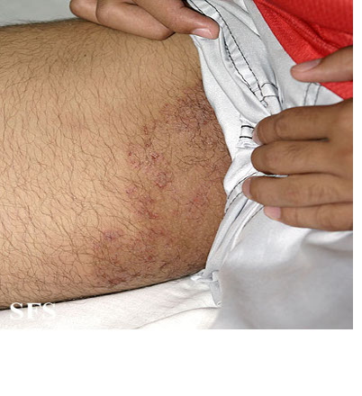 Infections Of The Skin. skin infections called