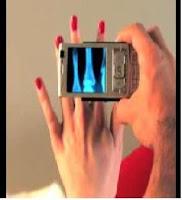 حصريا برنامج لكشف عظام اليد لـN82