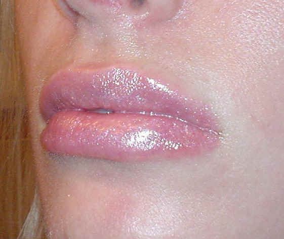 Eczema Lips Symptoms - Doctor answers on HealthTap