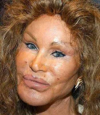 jocelyn wildenstein 2010. Posted 23 April 2010 - 04:28