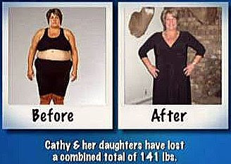 Cathy Skell before and after pic