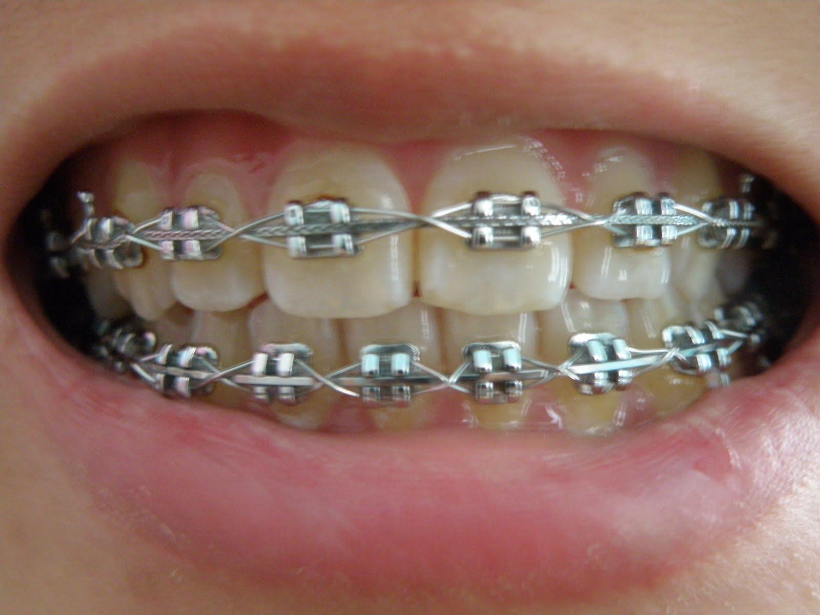 Yellow Teeth Girl Braces Colors For Yellow Teeth