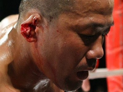 10 MMA Photos That Will Scare Your Children and Make You Cry Earoff