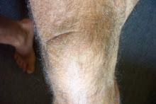 knee hair