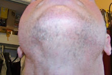 Beard hair under chin