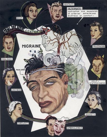 [migraine+draw.jpg]