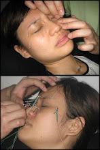 Akupunktur Kecantikan