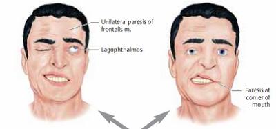 gangguan bicara karena stroke