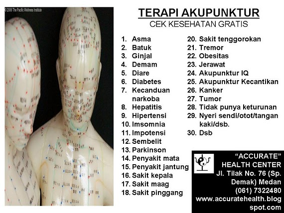 TERAPI AKUPUNKTUR