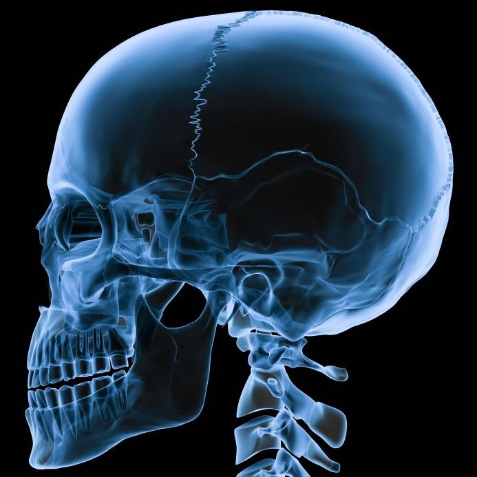 Skull+X+ray+human.jpg