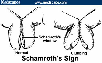 Schamroth's windows test is used in the diagnosis of nail clubbing.