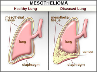 What is Pleural Mesothelioma?