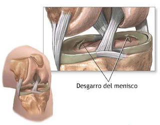 meniscos cirugia lesion rodilla