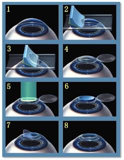 intralasik lasik laser miopia cirugia refractiva astigmatismo