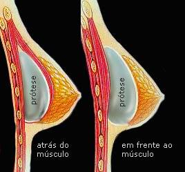 implantes siliconas mamarios aumento protesis