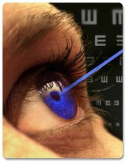cirugia ocular laser refractiva