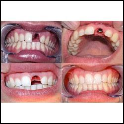 mejor implante dental protesis puente