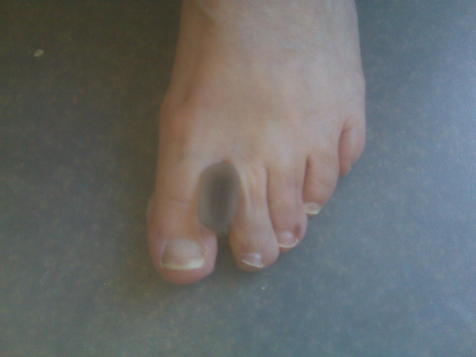 Как убрать косточку на ноге большого пальца в домашних условиях 31