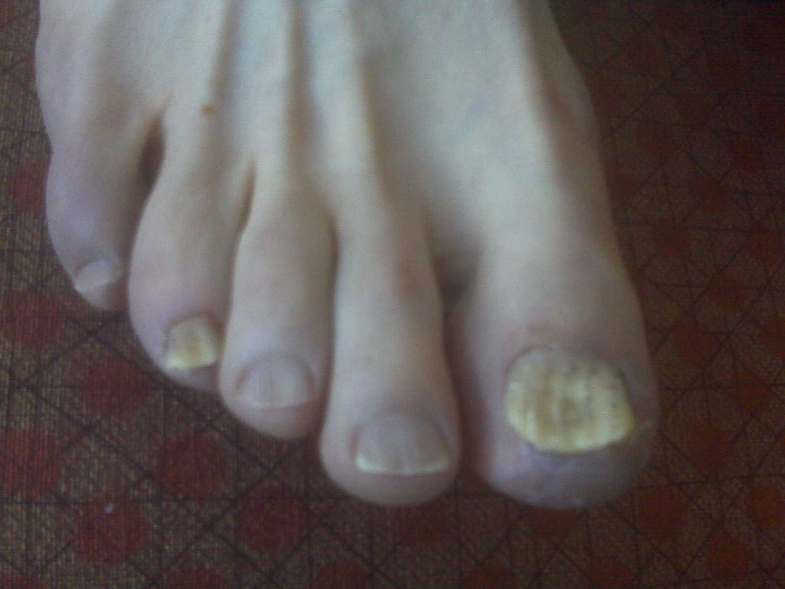 Foot and Ankle Problems By Dr. Richard Blake: Toenail Fungus: Key ...