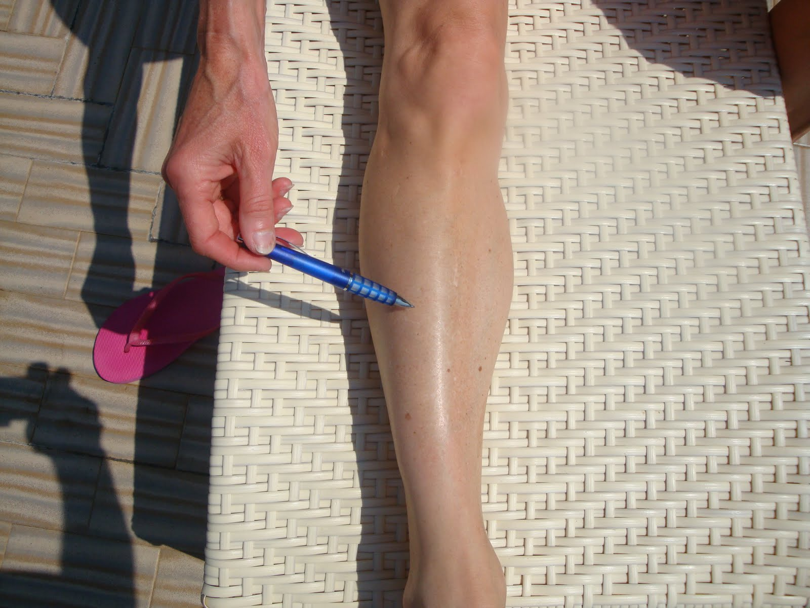 Foot and Ankle Problems By Dr. Richard Blake: Shin Splints Part II ...